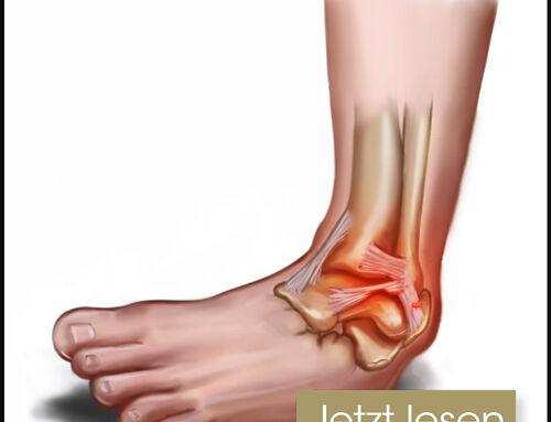 Schmerzen im Sprunggelenk: Wie sollten Zerrungen und Risse der Bänder des Sprunggelenks behandelt werden?
